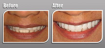 Dentures - Dr  Cutts' Adult Dentistry