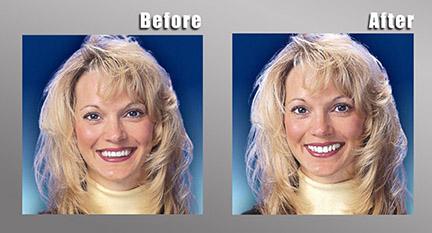 Dentures Temecula