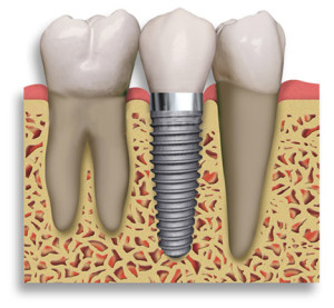 Implants Temecula